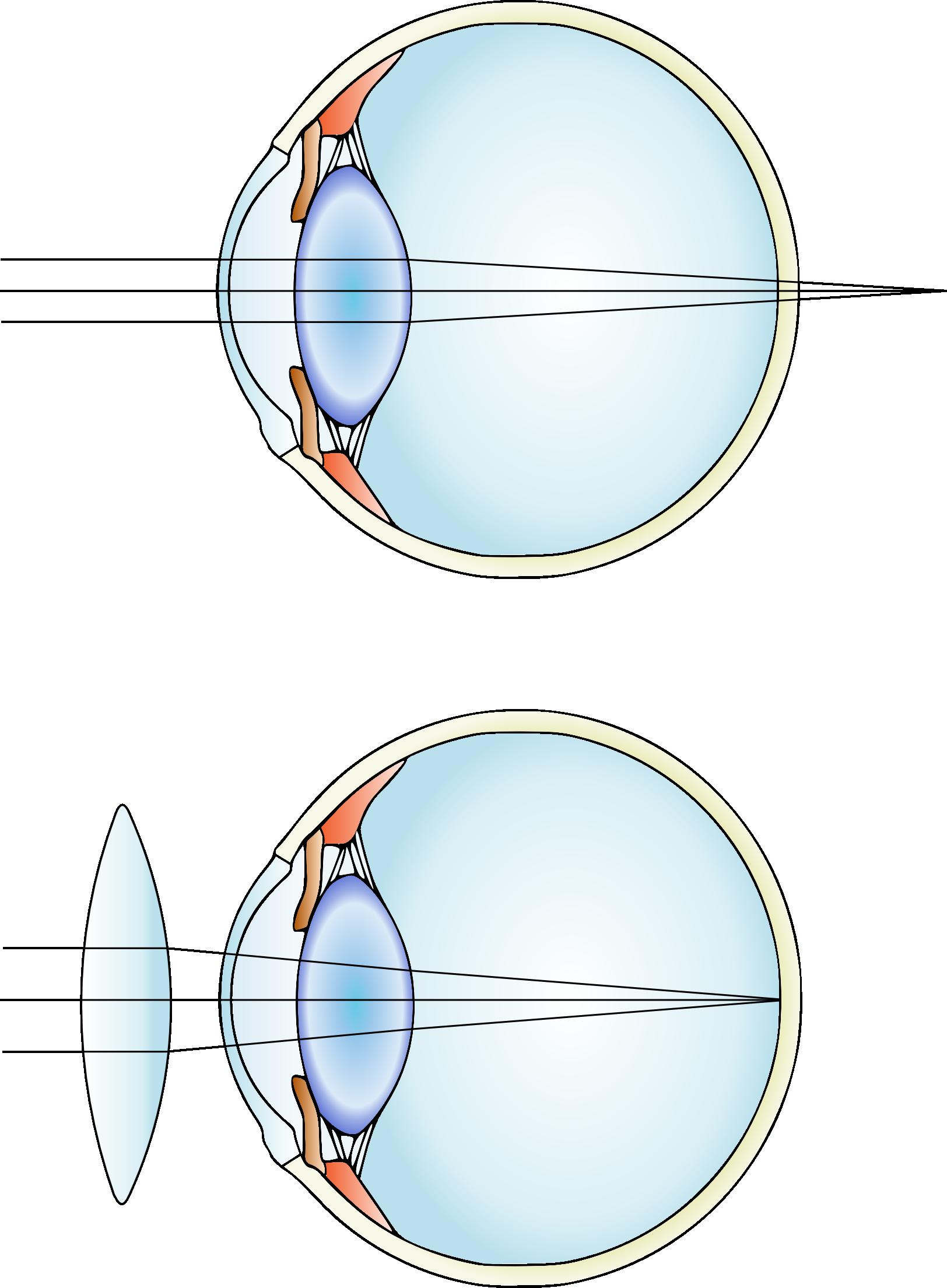 hypermetropia and correction